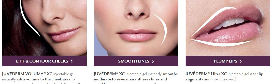Juvederm treatment areas - Cheeks, Smooth Lines, Plump Lips