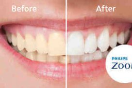 Teeth-Whitening-before_after
