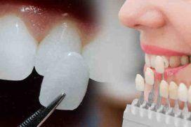 dental-veneers-272x182
