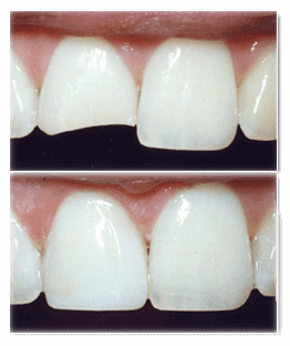 Chipped Tooth Restored with Composite Bonding
