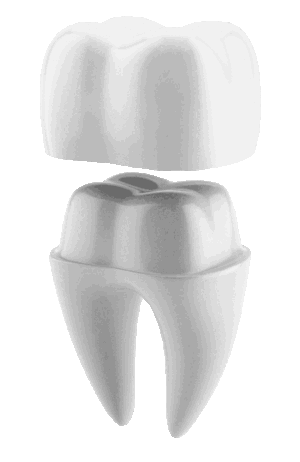 Image showing a Dental Crown on a tooth