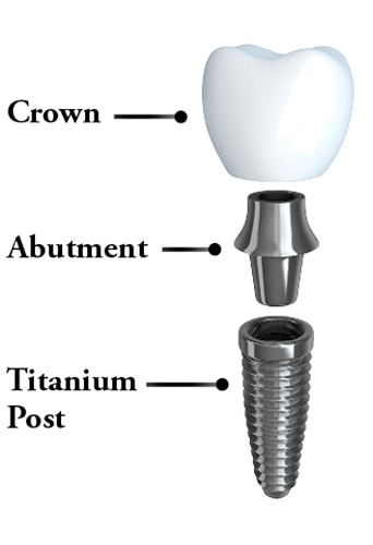 Image showing dental implants, abutment, and crown