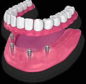 ImplantDentures-300x294