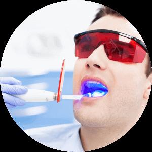 White Composite Filling Procedure