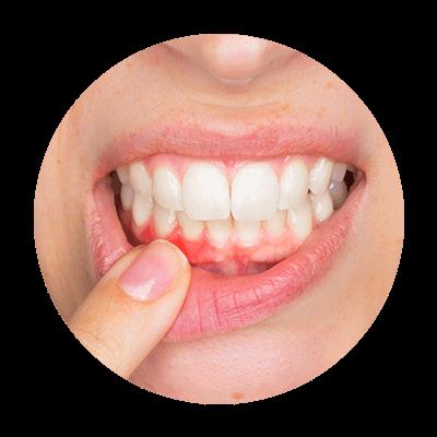 Image of patient smile showing gum disease