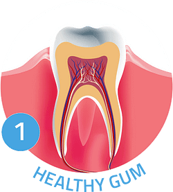 Image showing healthy gums