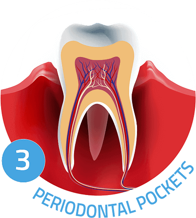 Image showing periodontal pockets