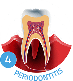 Image showing periodontitis