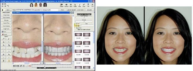 smile_simulation_software1