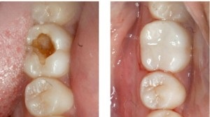 Tooth Cavity restored with White Fillings