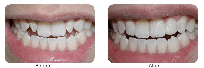 Dental-bonding (1)