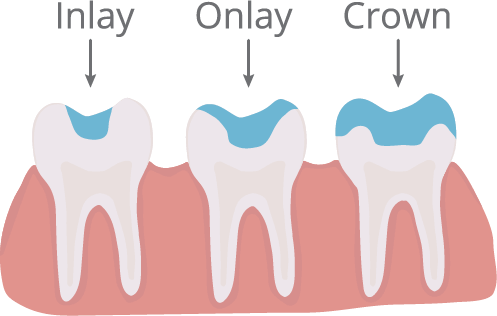 Image illustrating the difference between an Inlay, Onlay, and a crown