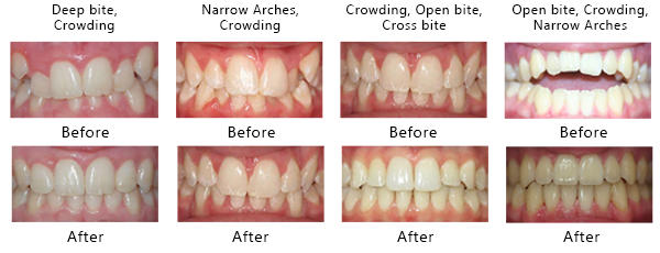 Before & After images of Invisalign treated cases