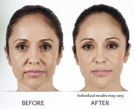 Juvederm_Before_After_01