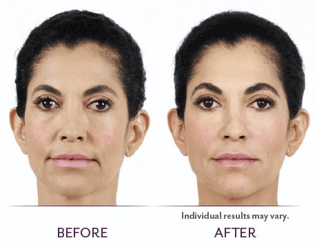 Juvederm_Before_After_02