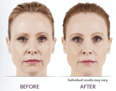 Juvederm_Before_After_03