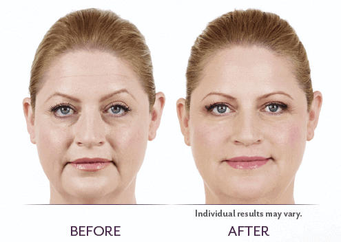 Juvederm_Before_After_04
