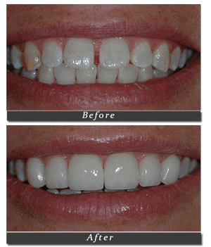 Porcelain-Veneers-1