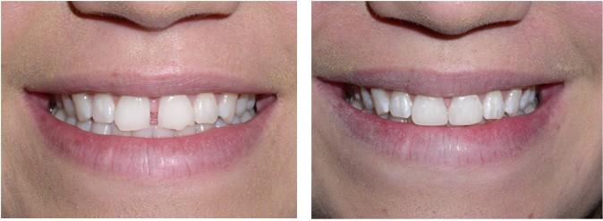 Teeth-Bonding-2