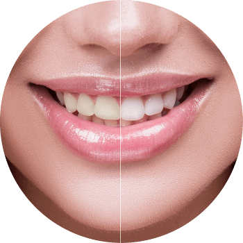 image of a smile showing Teeth whitening results
