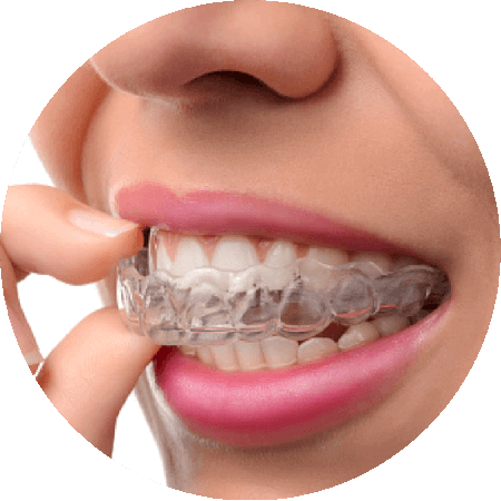 Image of Invisalign clear aligners