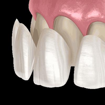 image illustrating dental veneers