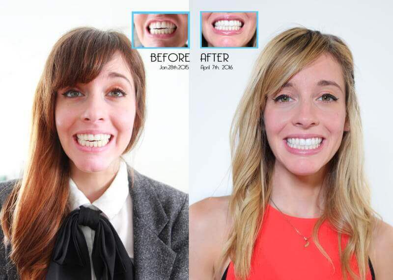 Before & After images of a patient who went through Invisalign treatment
