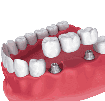 Image of Implant bridge - one of many restorative dentistry options we offer for replacing missing teeth