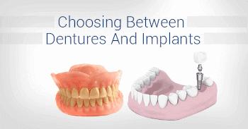 Image showing dentures vs dental implants